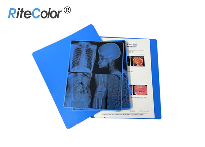 A4 X Ray Medical Imaging Film 280 Gsm Gram Weight For Canon Epson Inkjet Printing